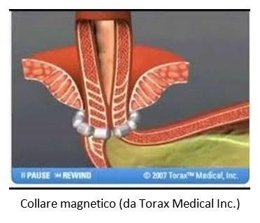 Collare magnetico (da Torax Medical Inc.)